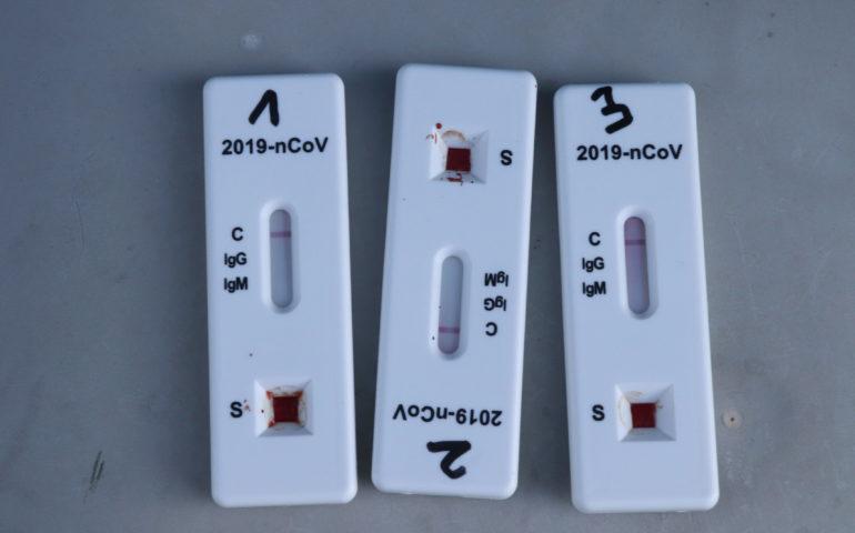 Test d'antígens